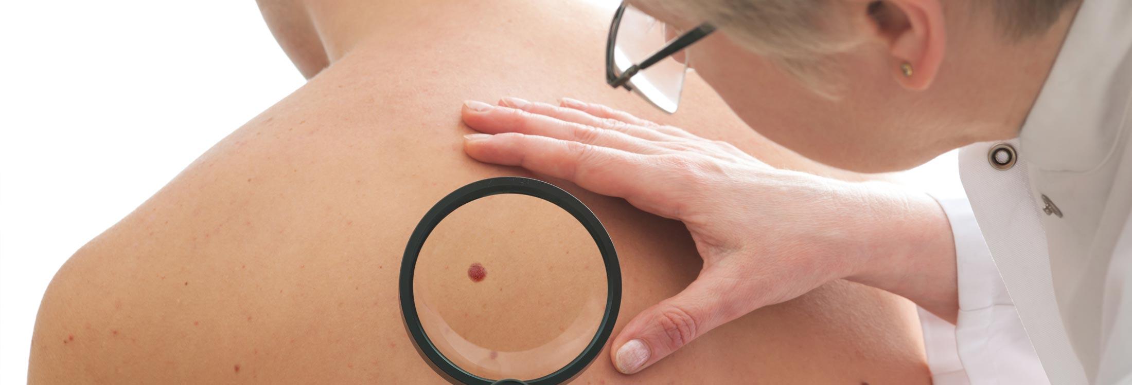 Radien Dermatology - Full Skin Examinations for Cancer