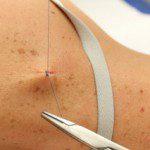 Surgical Dermatology Closing